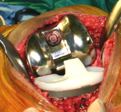 Premedication for Dental Treatment: Artificial Joints and Heart Problems