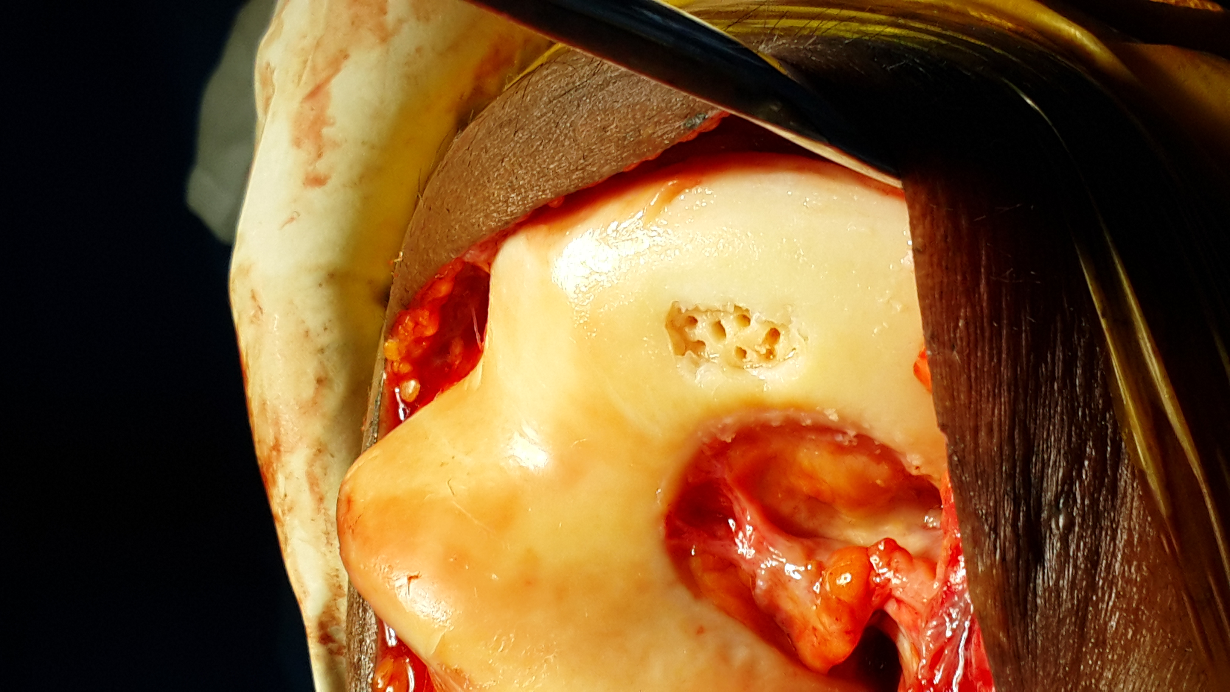 Microfracture Relieves Knee Pain In Young Patients