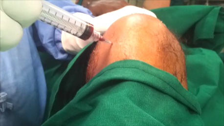 Knee pain relief with injections