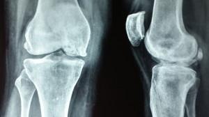 Avascular necrosis knee