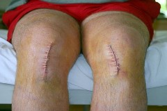 Pain free knee replacement India
